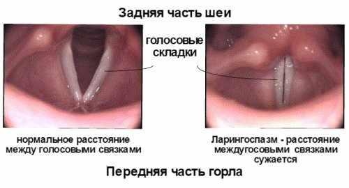 Фото связок при ларингоспазме