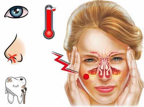 Симптомы гайморита