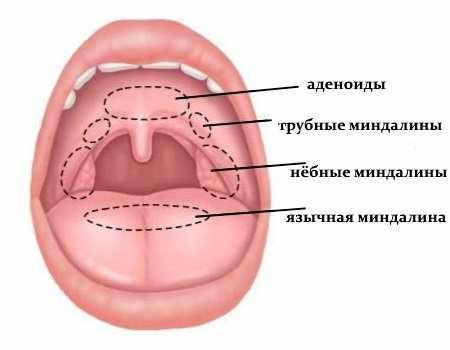 Виды миндалин