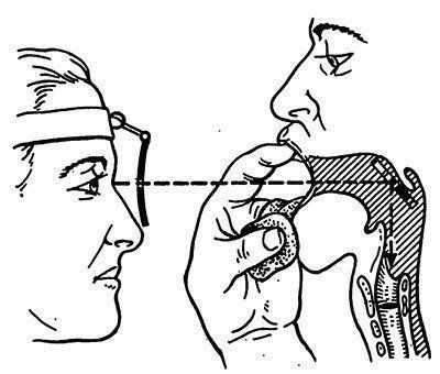 Непрямая ларингоскопия