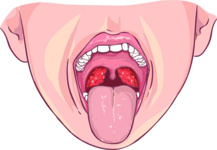 Как вылечить стрептококковую инфекцию у взрослых и детей?
