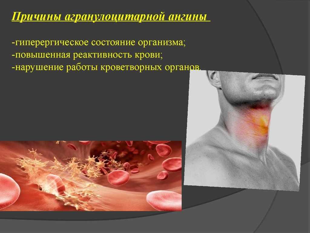 Агранулоцитарная ангина