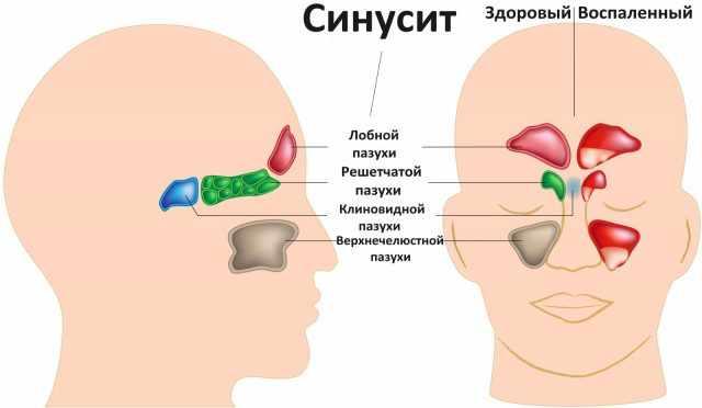 воспаленные пазухи носа